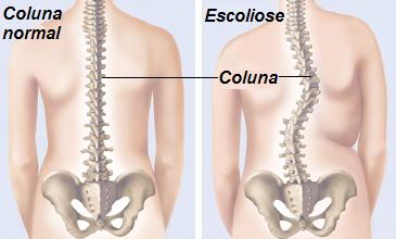 O papel dos músculos na Escoliose