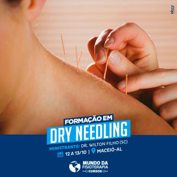 Dry Needling (Agulhamento a Seco)