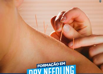 Dry Needling (Agulhamento a Seco) – Dr. Leonardo Emery