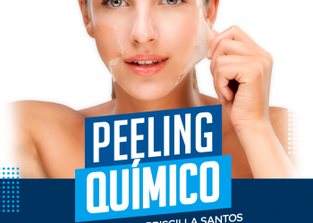 Peeling Químico